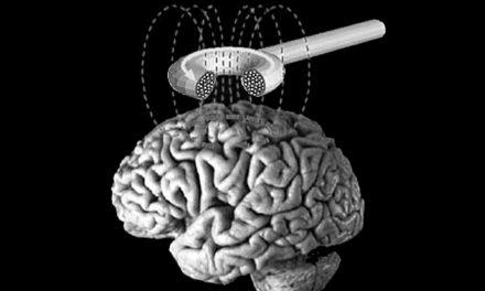 La stimulation cerebrale comme traitement de l'addiction à la cocaïne