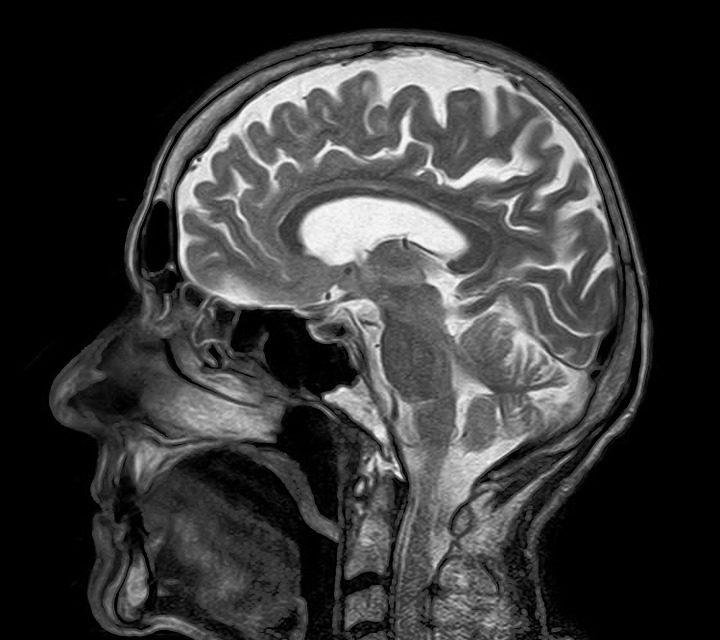Le tabac, mais pas le cannabis, est associé à des changements des volumes sous-corticaux